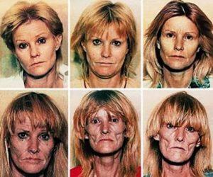 Pre i za vreme upotrebe droge